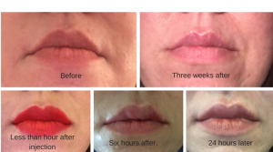 restylane-silk-before-after